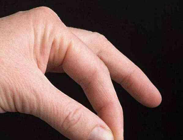 """身体好不好,看看指甲?指甲上有这3种信号,是""""癌细胞""""想活跃"""