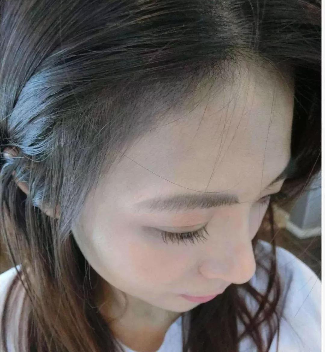 女性头发稀疏,男性大面积脱发,秃顶,发际线高,额头宽,m型脱发或者斑秃图片