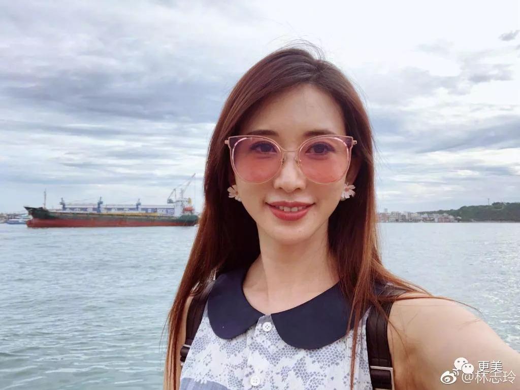 张檬脸上5斤玻尿酸吓坏网友,她和王祖贤犯了同样的整容错误