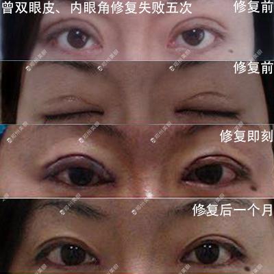睁眼角增生拥有疤痕怎么办