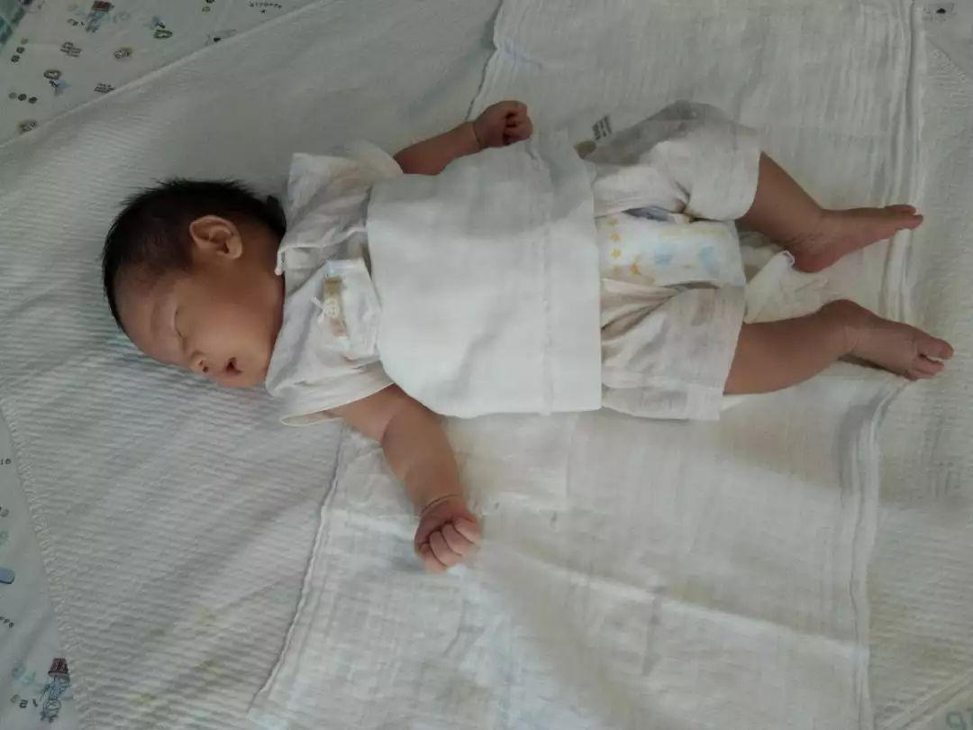 婴儿湿疹图片和症状
