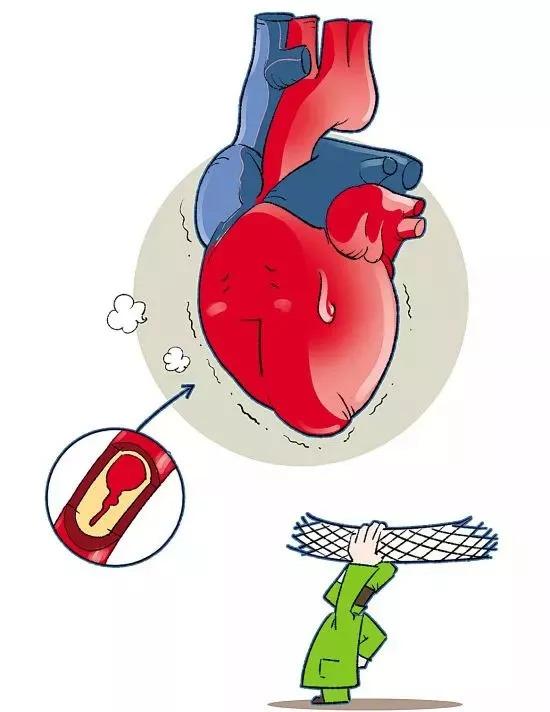 欧洲心脏病学会年会,又有新内容!图片