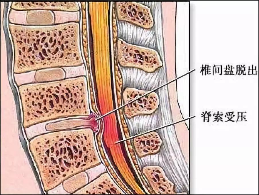 椎间盘突出压迫周围组织神经示意图.