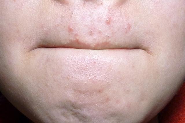 脸上螨虫少,皮肤一切都好 聪明人用这招,除掉脸上扎堆的螨虫