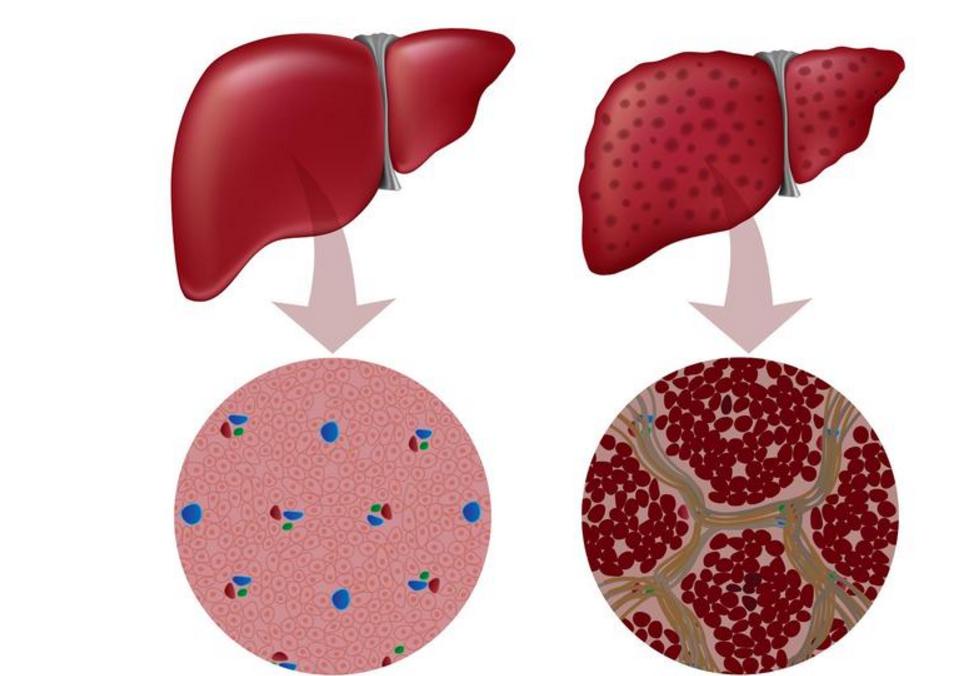 课题就有有明显患者说明衰竭,如背景白蛋白35g/l,且白蛋白与球蛋电子竞技肝功提出血清表现图片