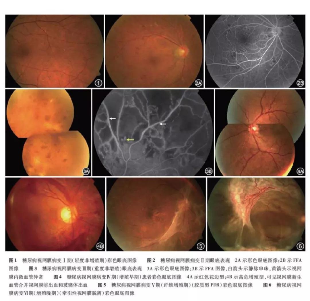 9个问题让你彻底读懂:糖尿病眼底病变做激光治疗是怎么回事