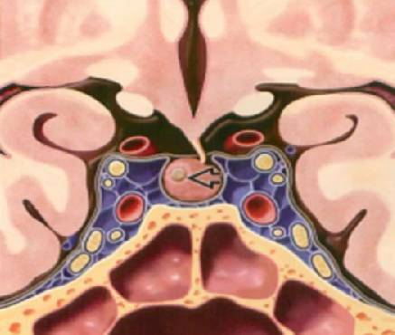 一   垂体微腺瘤