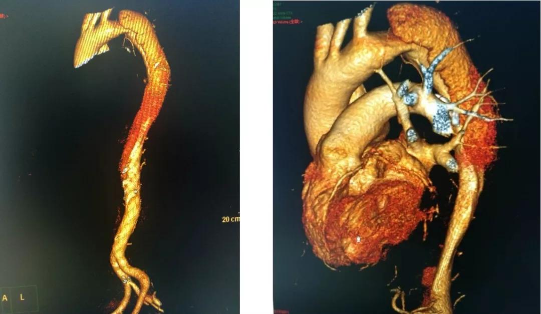 主動脈夾層,高血壓患者要警惕這個病!