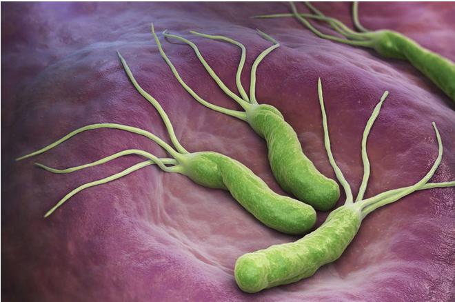 感染幽門螺旋桿菌的途徑只有5個,你能避開嗎?第4個很難!