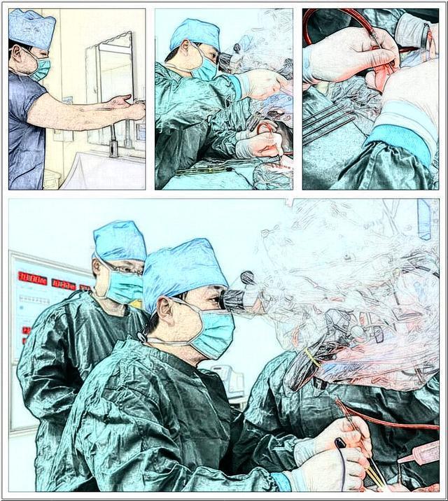分享一例三叉神经痛患者治疗病例