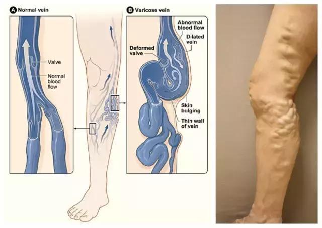 教师是下肢静脉曲张的易患人群,如何预防?
