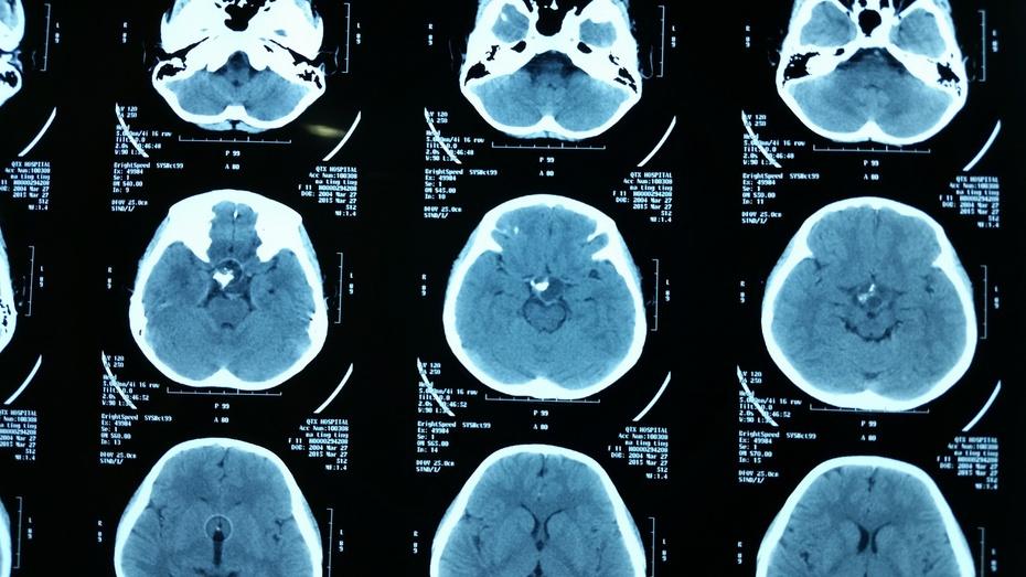"""贺晓生教授手术:脑内的""""鸡蛋""""—儿童颅咽管瘤"""