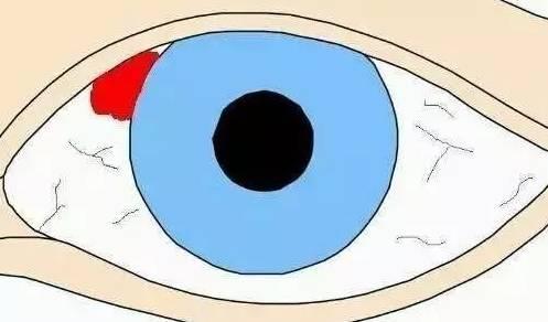 眼底出血是什么眼病?这四类人需警惕!