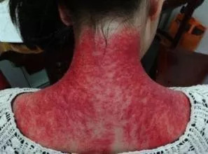 比如 刮痧,拔火罐等等 但是每次刮痧拔火罐后 后背留下的红印 让女生