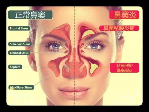 鼻窦炎怎么治_鼻窦炎不及时治疗后果会严重吗?