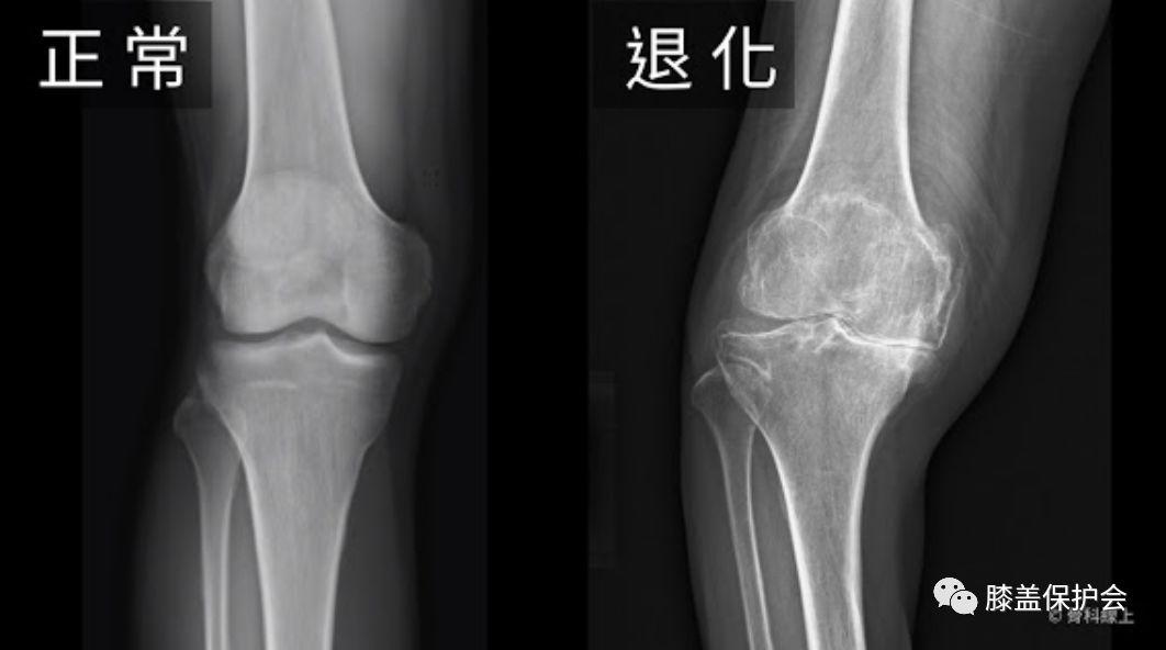 膝盖骨刺_一篇文搞懂常见膝关节疾病X光片判读_节炎