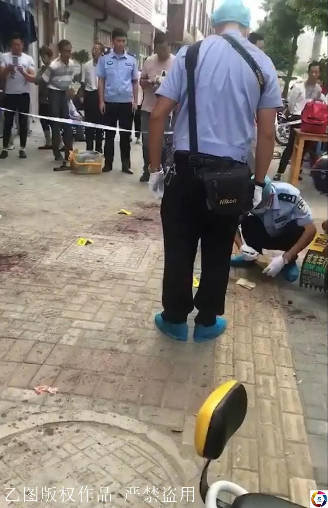 女子街头劝架被砍伤,缝了106针,事后称今后遇到这种事还会管