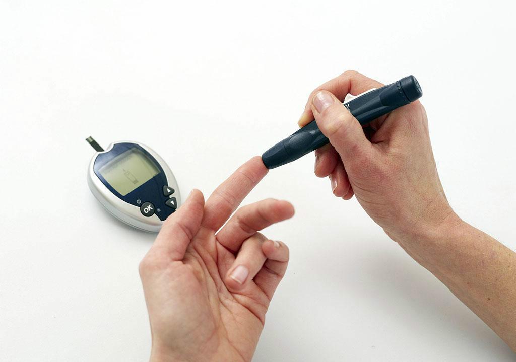 患上糖尿病足的第一個信號,常常是這種異常,兩類人一定要檢查!