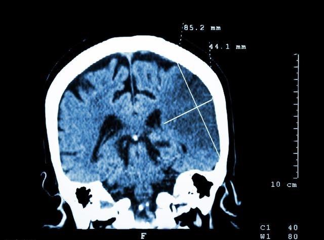 """""""腔隙性脑梗死""""是老年常见病?对身体有什么影响,怎么预防呢"""
