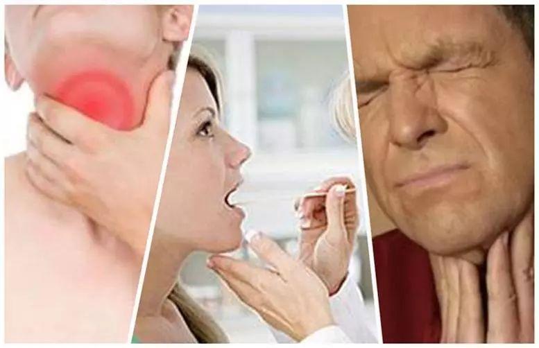 慢性咽炎 如何澆滅喉嚨裡的那把「火」?