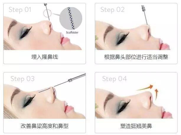 注射隆鼻可维持多久_线雕提升能维持多久?_PPDO蛋白线