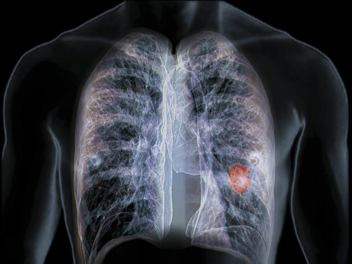 长期吸烟的人,如果四个测试能顺利通过,恭喜你的肺还很健康!