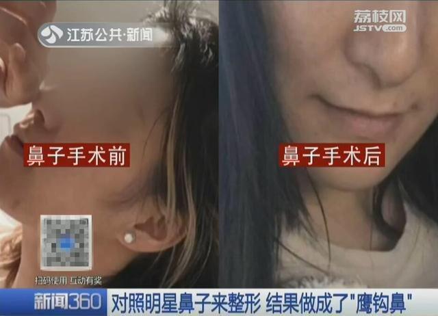 整容变毁容 女子拿着迪丽热巴照片去整鼻子,结果被整成鹰钩鼻图片