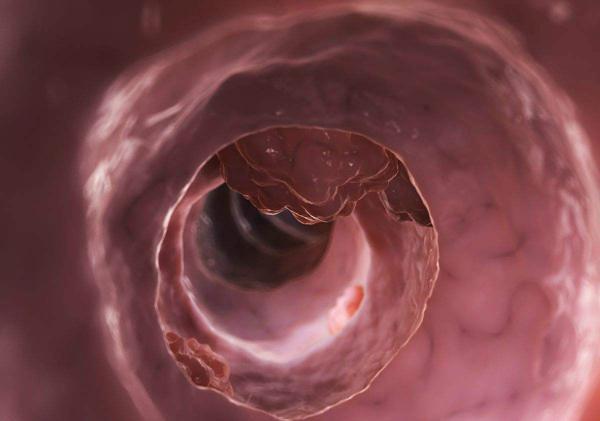 大腸癌常常有四個標志,出現這種異常,提示惡性腫瘤已是進展期!