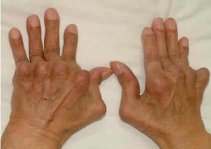 一款来自美国的类风湿关节炎新药-Kevzara(sarilumab