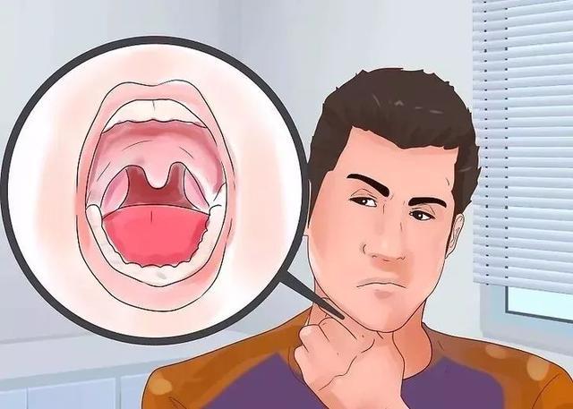 晚上睡到半夜,经常口干口苦?可能暗示这6种疾病