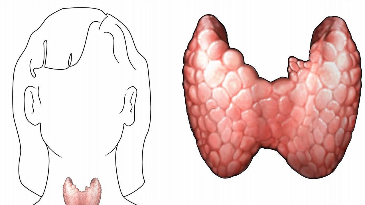 甲状腺双侧叶内多发结节