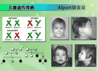 遗传病治疗_【罕见病系列】Alport综合征——并不罕见的罕见病_治疗
