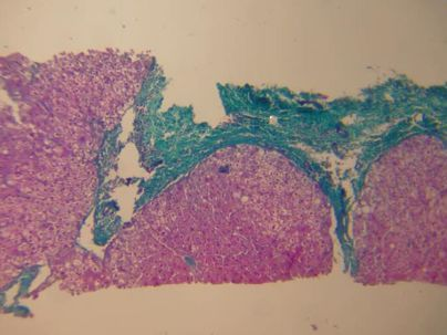 masson染色 由于肝穿标本的局限,虽然看不到整个肝小叶被纤维化图片