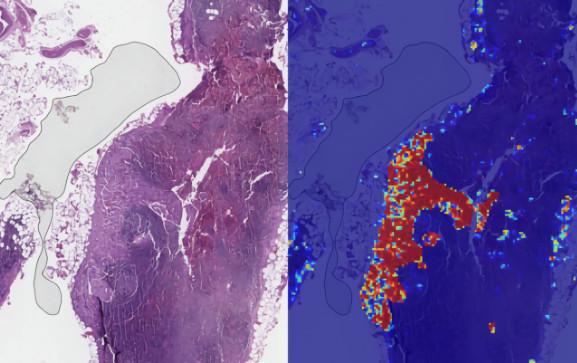谷歌人工智能在乳腺癌监测中获得99%准确率