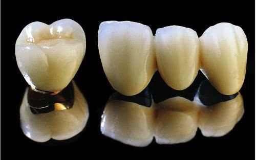粘烤瓷牙_若你烤瓷牙只是单颗的,只需要把牙面打磨一下,用一些好的粘接剂就可以