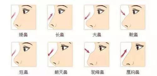 华美美学设计隆鼻
