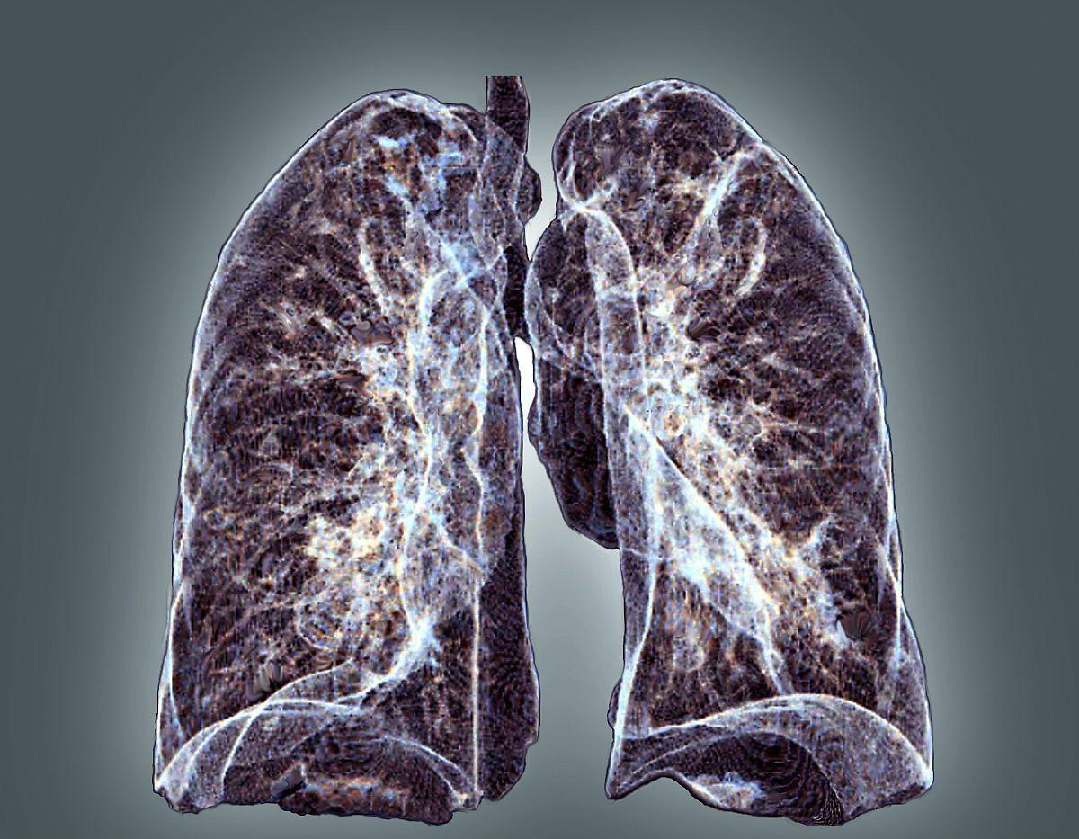 45岁女子确诊晚期肺癌,不抽烟不喝酒,只因长期在做两件事!