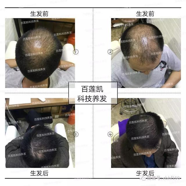 过度熬夜打麻将导致脱发加重,4个月在百莲凯科技养发见证功效