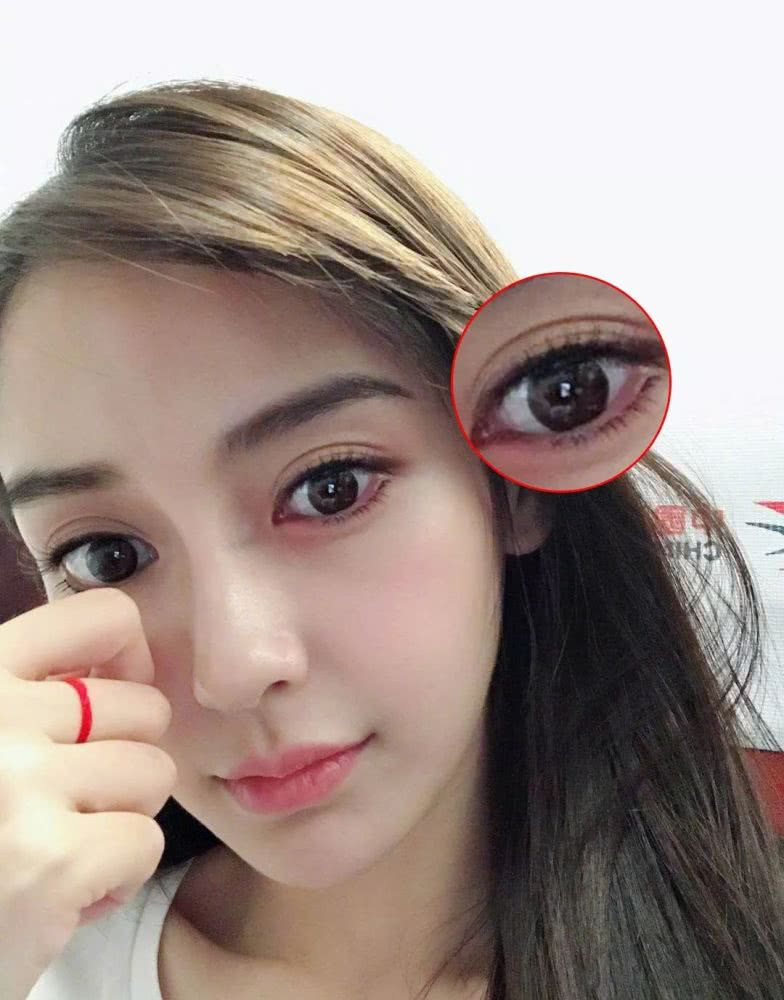 angelababy选择的双眼皮贴是图片