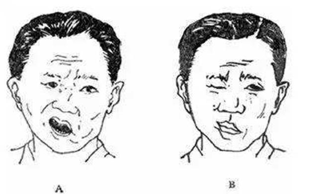 """便叫大爷""""笑一个"""",结果, 笑而右侧面部僵硬无表情,口水也控制不住地图片"""