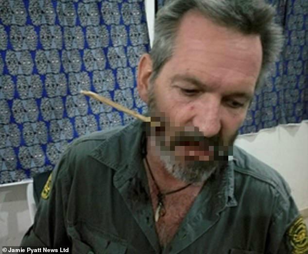 守护大自然的英雄,肯尼亚护林员被偷猎者射穿面部,最后奇迹存活