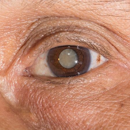 白内障眼球图片_科普:得了白内障眼睛一般会有哪些症状