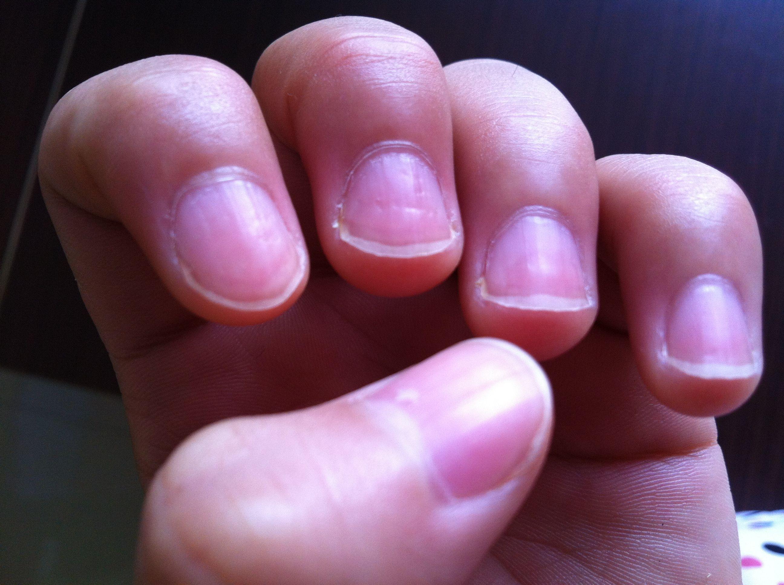 手指甲凹凸是灰指甲 厨房3宝,泡一泡,在家不花钱,轻松除灰甲