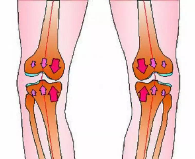每天吃鈣片、喝牛奶, 40歲時醫生說她膝關節「廢了」,只因這種事做太多!