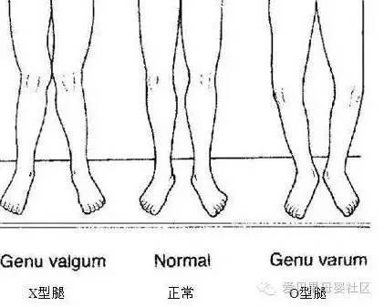 【热文】宝宝O型腿X型腿?元凶是纸尿裤或过早站立?真相原来是这样!