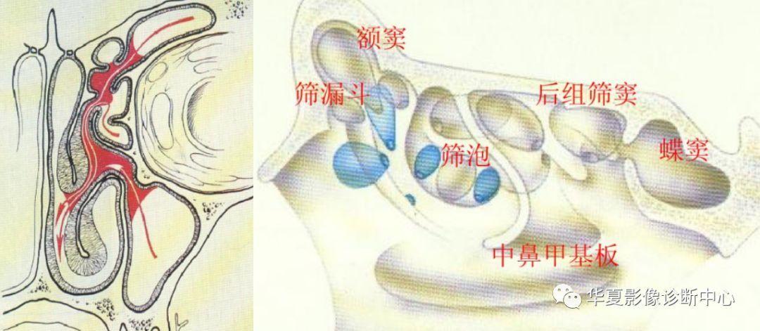 【影像基础】鼻窦窦口复合体解剖变异
