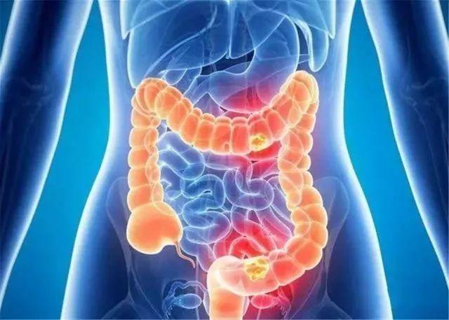 慢性结肠炎会变成结肠癌吗?