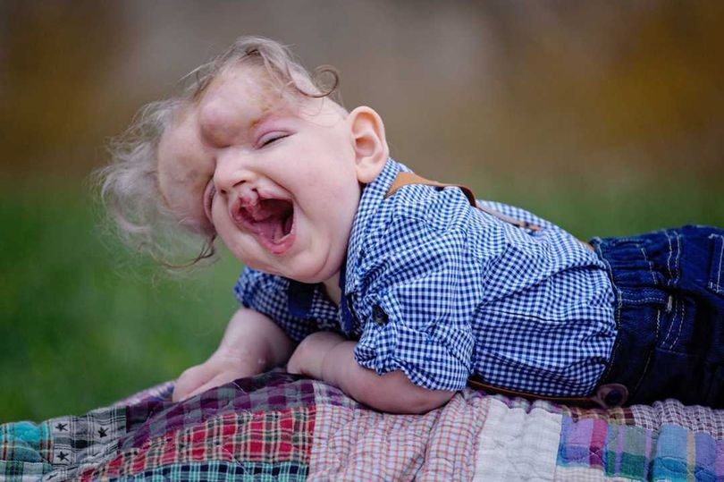 孩子出生没有头骨,医生断言活不了,因为父母的爱他已经1岁了