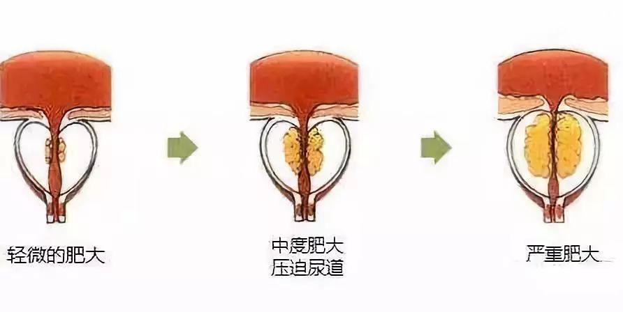 前列腺增生示意图