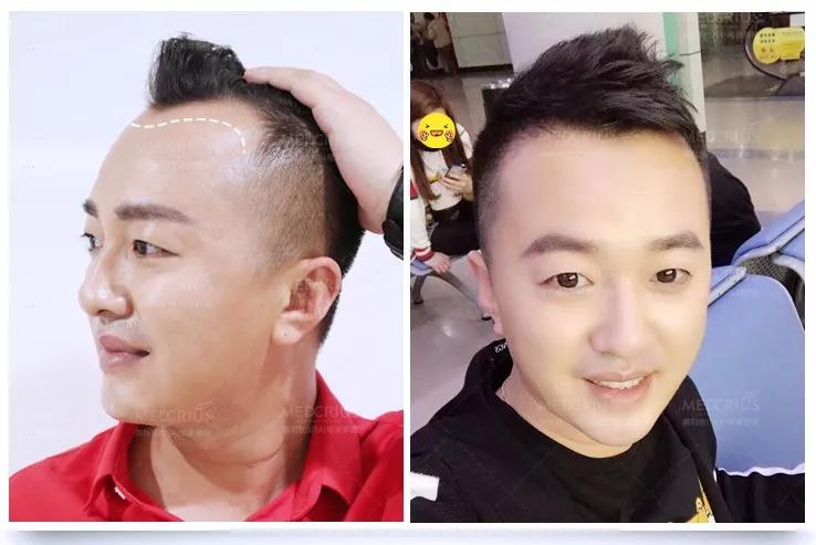 遗传性脱发,秃顶,前额光秃.可以这样解决!